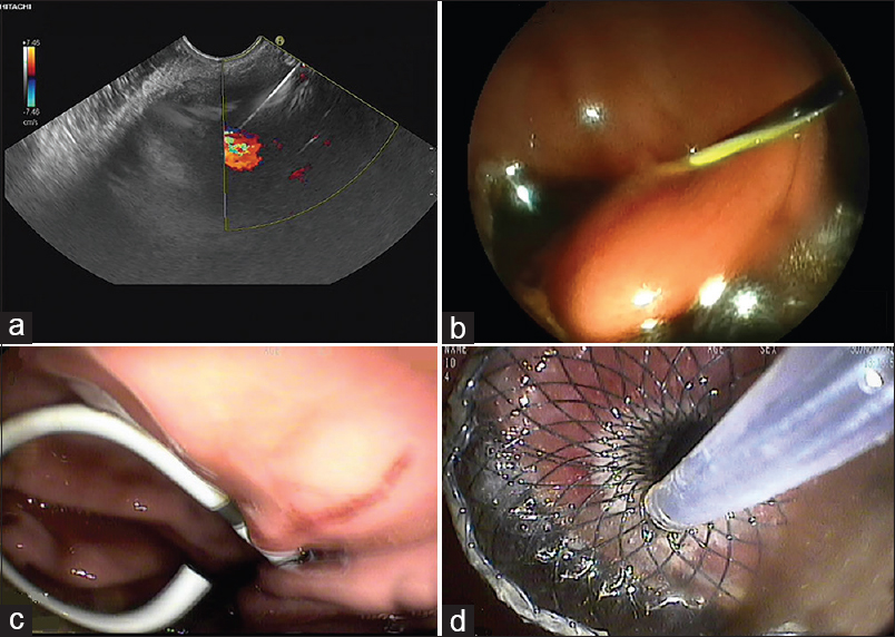 "Figure 1: EUS-guided pancreatic collection drainage procedure. (a) A 19G EUS fine-needle puncture of a cyst using EUS guidance. (b) A 0.035"" guidewire being inserted into a peripancreatic fluid collection. (c) A double-pigtail plastic stent in place. (d) A fully covered self-expanding metallic stent in place"