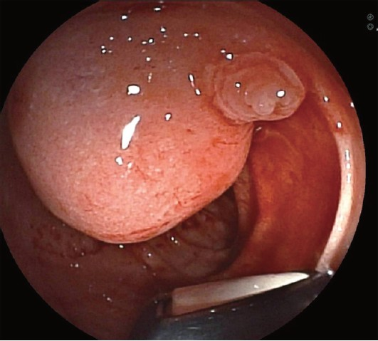 Figure 1: Endoscopy demonstrated a sub-epithelial periampullary mass with unremarkable major papillary orifice.