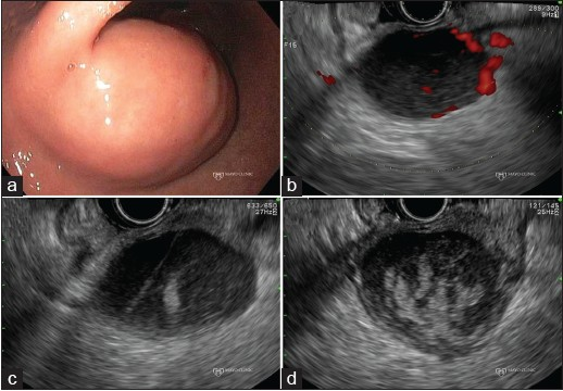Figure 2. Extraluminal bleeding after endoscopic ultrasound (EUS)- guided fine-needle aspiration of a gastrointestinal stromal tumor (GIST). (a) Endoscopic view of a gastric GIST; (b) EUS Doppler imaging reveals intralesional vessels; (c) New hyperechoic area signaling blood can be seen lying in proximity to the needle tract; (d) Increasing size of the hyperechoic area, indicating continued bleeding, within the GIST