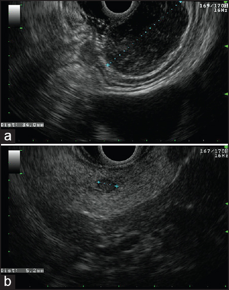 Figure 1. Linear endoscopic ultrasound depicted: (a) 35 mm hypoechoic heterogeneous mass in the upper gastric corpus. Layer or origin muscular propria; (b) incidental 5.8 mm isoechoic nodule in pancreatic tail