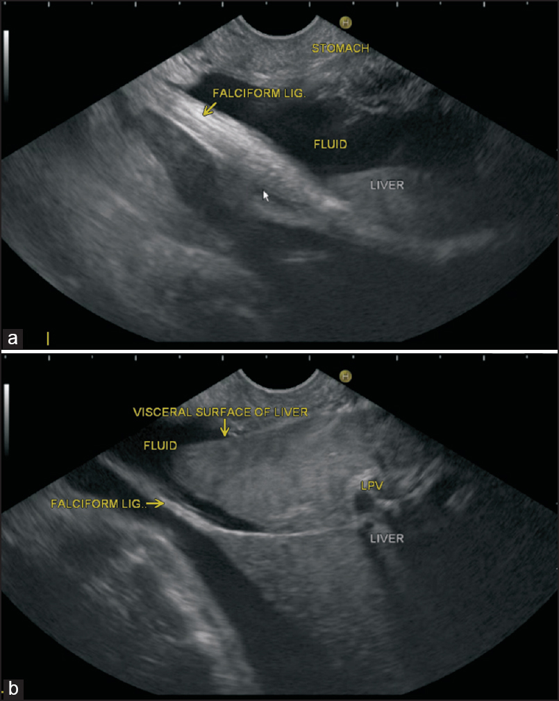 Imaging of peritoneal ligaments by endoscopic ultrasound (with ...