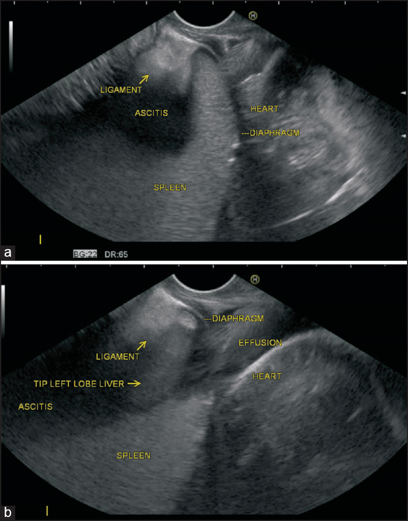 Imaging of peritoneal ligaments by endoscopic ultrasound (with videos)