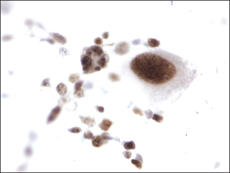 Figure 4. Aspirate tumor cells reactive for Sox-10, supporting a diagnosis of metastatic melanoma (immunohistochemical stain)