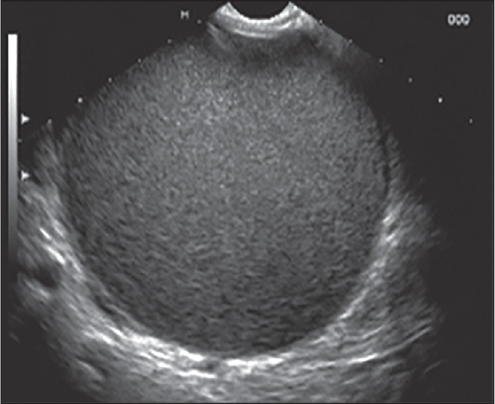 Figure 2. Prior to puncture, the whole pseudocyst should be visible under endoscopic ultrasound and the intended puncture should in the center of the pseudocyst