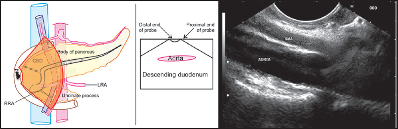 Figure 28. When the probe is placed in the descending duodenum the aorta generally lies parallel to the probe. In this position the proximal end of the probe as well as the distal end of the probe is equally close to aorta. In this position slow withdrawal of the probe will show the origin of the superior mesenteric artery and celiac artery