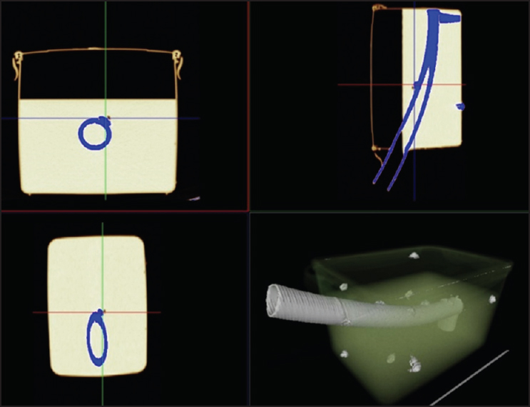 A novel fusion imaging system for endoscopic ultrasound