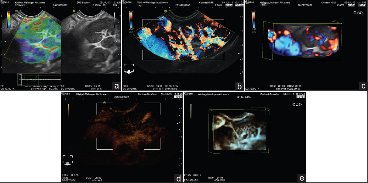 Role Of Contrast Enhanced Endoscopic Ultrasound In Lymph Nodes