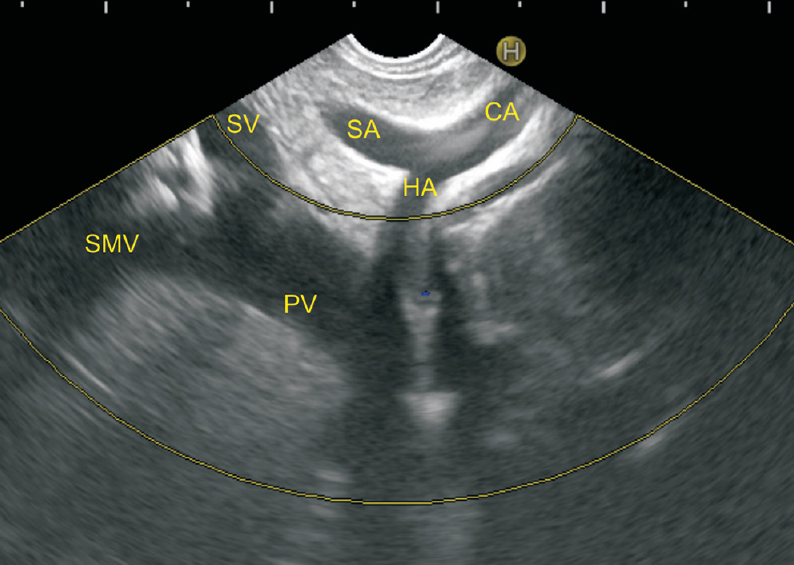 Figure 4: The CA is forming the body of the arterial seagull and the splenic artery (SA) is going towards the 12 o'clock position and the common hepatic artery (CHA) is going towards the liver at 7 o'clock position. The confluence of the SV and SMV to form PV is also seen
