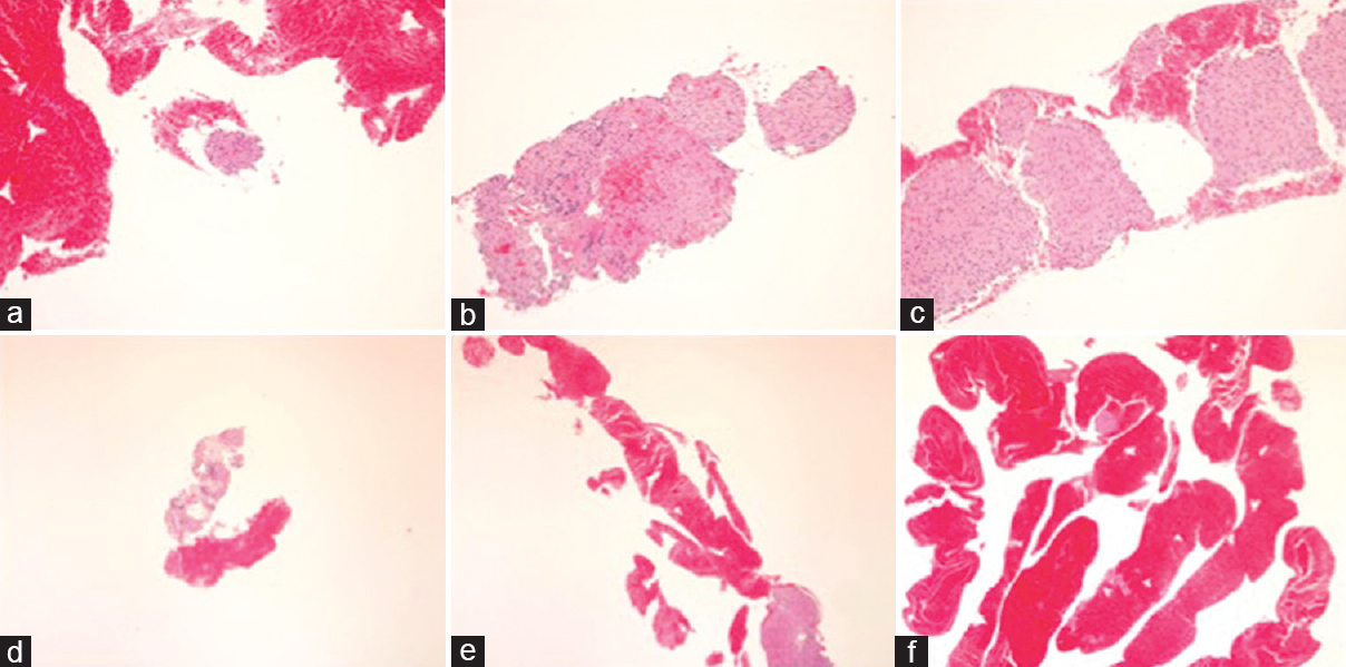 Figure 2: (a) Amount of core tissue score 2 (a tissue fragment; a cell cluster). (b) Amount of core tissue score 3 (a small histological core tissue; <×10 objective, field diameter = 2.2 mm). (c) Amount of core tissue score 4 (a large histological core tissue; >×10 objective, filed diameter = 2.2 mm). (d) Amount of blood score 1 (none– few). (e) Amount of blood score 2 (moderate). (f) Amount of blood score 3 (high)