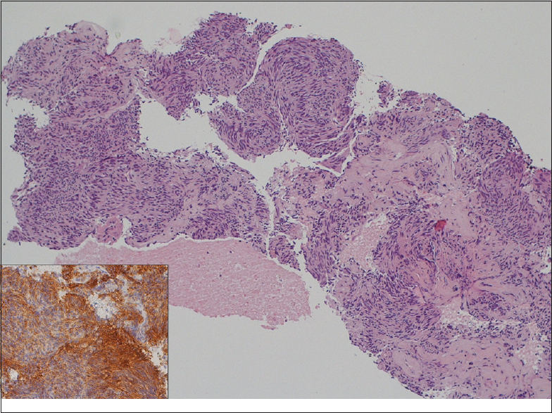 Figure�3: Histological diagnosis of a gastrointestinal stromal tumor case obtained with 20-gauge biopsy needle. Tissue fragments showing a group of spindled-shaped cells (H and E, ×10). Diffuse positive staining for DOG1 (inset, ×20)