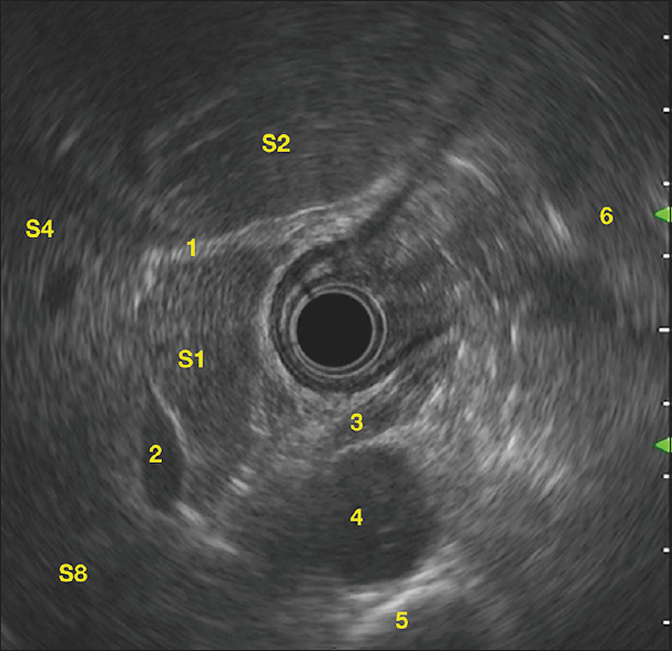 Figure 1: Radial EUS imaging at the gastroesophageal junction. The diaphragmatic crus forms the sonological demarcation between the thorax and the abdominal cavity. The caudate lobe is located to the front and left of the inferior vena cava. The fissure for <i>ligamentum venosum</i> separates S1 from S2 and S4. The gastric fundus is seen as a large area of air-artifacts on the right side of the screen. 1: <i>Ligamentum venosum</i>; 2: Inferior vena cava; 3: Diaphragmatic crus; 4: Aorta; 5: Spine; 6: Gastric fundus