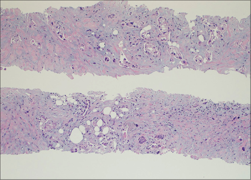 Figure 1: Cell block from an Acquire needle biopsy showing intact cores with infiltrating malignant glands and single cells, consistent with adenocarcinoma (H and E, ×10)