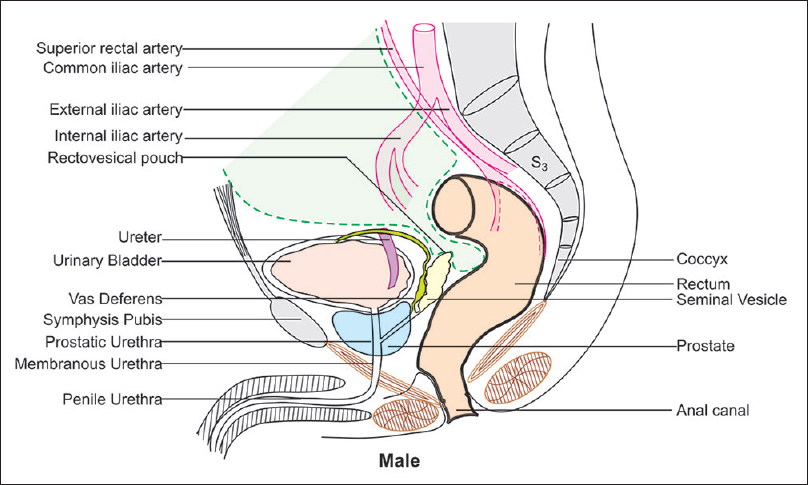 Figure 26: While going from the rectum to the bladder in male and from the rectum to the uterus in female, the peritoneum comes to the most inferior location in the pelvis and touches the seminal vesicle or posterior fornix (uterocervical angle) of the vagina