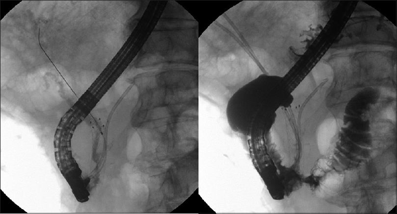 Figure 1: Left: In another hospital, the patient had undergone the placement of an SEMS to manage distal biliary obstruction caused by unresectable duodenal papilla cancer. A pancreatic plastic stent had been inserted to prevent pancreatitis. Cholangiography showed that contrast media flowed into the duodenum. The SEMS was patent. Right: Duodenal papilla cancer invaded the distal portion of the duodenum, causing gastrointestinal stricture