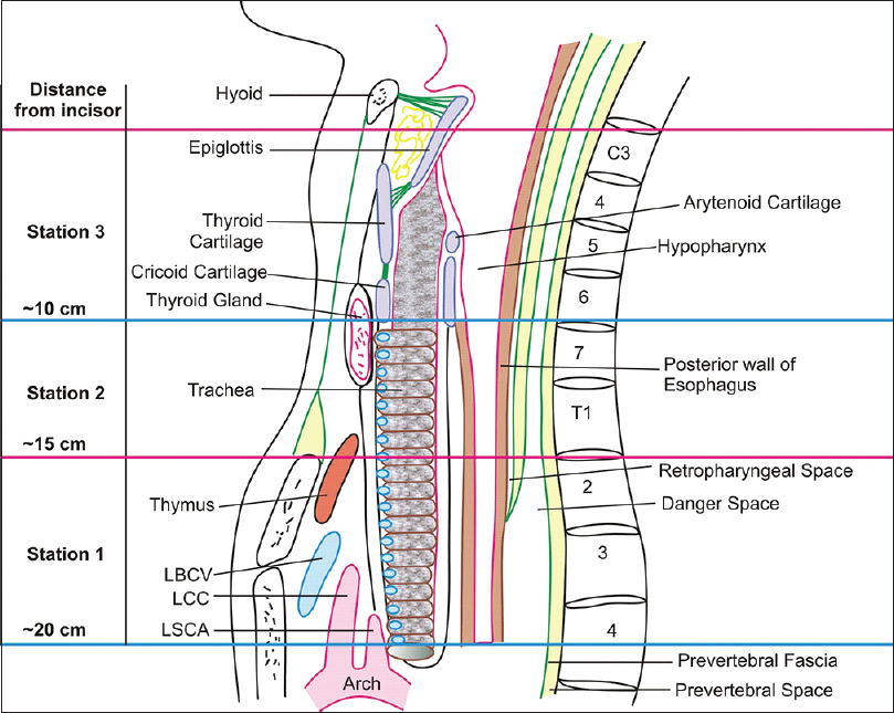 Figure 2: Schematic sagittal section showing the three stations from which EUS examination can be done. The examination from Station 1 is done from thoracic esophagus, which extends from arch of aorta to suprasternal notch. The examination from Station 2 is done from cervical esophagus, which extends from suprasternal notch to lower border of cricoid cartilage and examination from Station 3 is done from hypopharynx, which extends from cricoid cartilage to hyoid bone