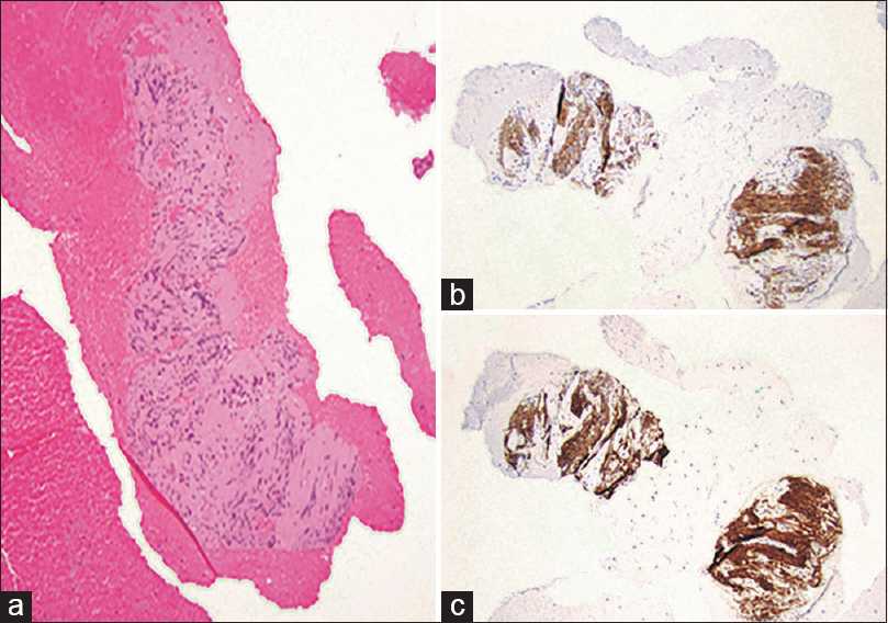 Figure 4: (a) H and E section (×100) of EUS-guided biopsy from ≴duodenal/gastric≵ lesion showing gastrointestinal stromal tumor, spindle cell type, with positive (b) CKIT and (c) DOG1 immunoreactivity